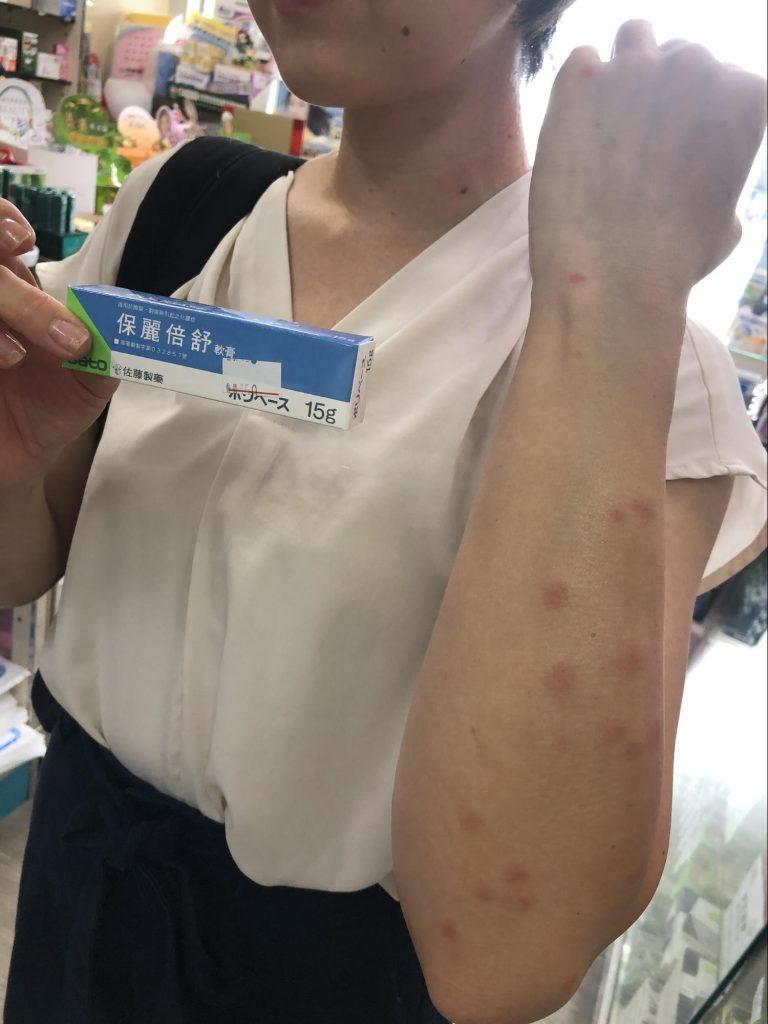 台湾での虫刺されに要注意! 強烈な痒みに襲われる最恐の虫「小黒蚊」、刺された際の症状と対策